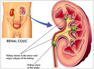renal stone treatment in pune