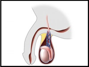 treatment of urethral stricture in pune